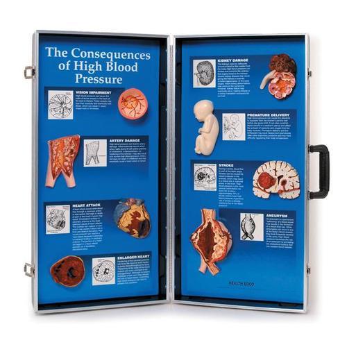 Diyastolik kan basıncı düşüklüğüne neden olan kalp kapak hastalığı